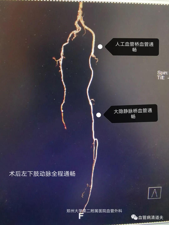 郑大二附院血管外科成功治疗一例复杂下肢动脉闭塞病变