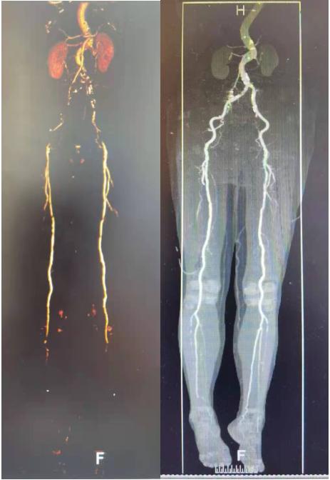 郑大二附院血管外科春节期间紧急处理三例动脉疾病患者